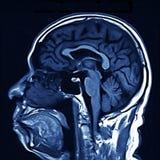 развертка mri мозга стоковое изображение rf