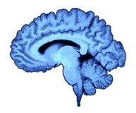 развертка mri мозга стоковая фотография