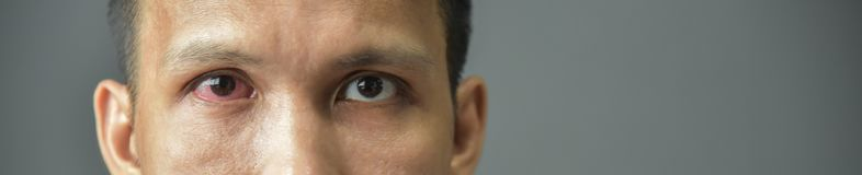 Раздражанный красный bloodshot мужской глаз стоковое изображение rf