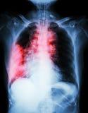 Рак легких стоковое фото