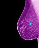 Рак молочной железы - маммограмма Стоковое Изображение RF