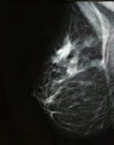 рак молочной железы Стоковые Изображения
