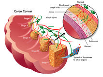 Рак толстой кишки Стоковые Фотографии RF