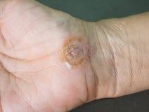 Рана на руке женщины Стоковая Фотография