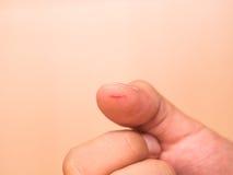 Рана отрезка большого пальца руки Стоковая Фотография RF
