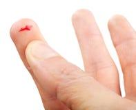 рана плоти перста Стоковое Фото