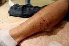 Рана 3 укуса собаки Стоковые Изображения RF
