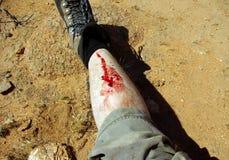 раненная нога Стоковые Изображения