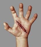 раненная рука Стоковая Фотография