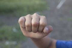 Раненый палец стоковое изображение rf