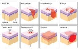 Раны кожи Стоковая Фотография RF