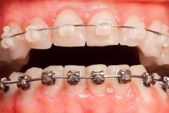 Раскрытый рот с расчалками керамических и металла Стоковая Фотография