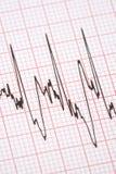 распечатка кардиографа Стоковое Изображение RF