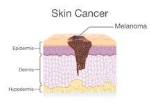 Распространять раковой клетки в человеческом слое кожи Стоковая Фотография RF