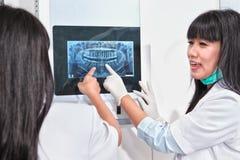 Рассматривая зубы x Рэй Стоковая Фотография RF