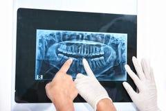 Рассматривая зубы x Рэй Стоковые Изображения RF