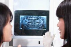 Рассматривая зубы x Рэй Стоковое Изображение RF