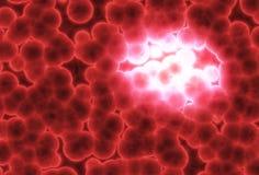 растущий тумор Стоковая Фотография