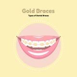 Расчалки золота зубоврачебные Стоковые Изображения