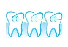 Расчалки зубов Стоковые Фото