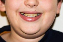 Расчалки и белые зубы усмехаясь медицинского обслуживания мальчика Стоковое Изображение