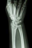 Радиус трещиноватости дистальный (косточка предплечья) стоковая фотография rf