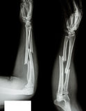 Радиус трещиноватости & ulnar косточка стоковое фото