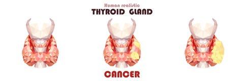 Реалистическая тироидная железа в низкое поли Человек 3 рака воспаления бесплатная иллюстрация