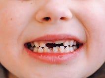Ребенок имеет зуб молока и новый взрослый зуб кривой Зубы молока обработки и заботы в детях стоковое фото