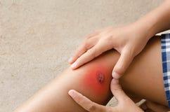 Ребенок раненый Закройте вверх по ране на ноге ребенка Мать одевая chil Стоковые Фотографии RF