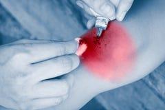 Ребенок раненый Рана крупного плана на колене ребенка Дети a Стоковые Фотографии RF