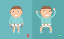 Ребенок самых лучших и худших положений для предохранения тазобедренной дисплазии иллюстрация штока