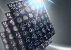 Результат развертки CT человеческого мозга как концепция будущего здоровья стоковое изображение