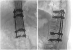 Реконструкция позвоночника хирургическая Стоковое Изображение