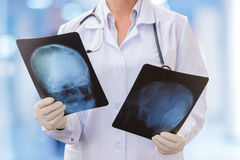 Рентгеновские снимки в руках ` s доктора стоковые фото