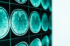 Рентгеновский снимок головы и мозга, MRI, в defocus стоковая фотография rf