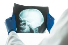 Рентгеновский снимок доктора рассматривая черепа Стоковые Изображения RF