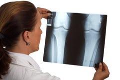 рентгеновский снимок доктора Стоковое Фото