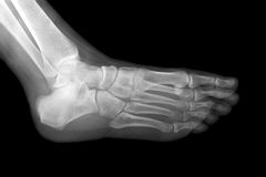 Рентгеновский снимок левой ступни Стоковые Изображения