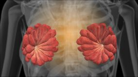 Рентгеновский снимок женских грудей маммограмма иллюстрация штока