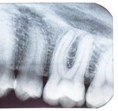 Рентгеновский снимок зуба. Стоковые Фото