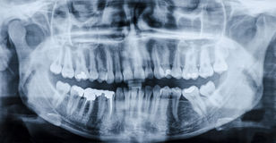 Рентгеновский снимок зубов стоковые изображения