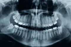 Рентгеновский снимок зубов Стоковое Фото