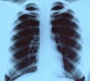 рентгеновский снимок изображения стоковое изображение