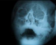 рентгеновский снимок изображения Стоковые Фото