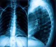 Рентгеновский снимок костяка Стоковая Фотография RF