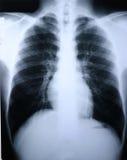 рентгеновский снимок легкя Стоковые Изображения