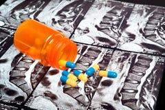 рентгеновский снимок лекарства Стоковые Фотографии RF