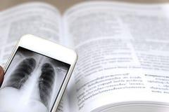 Рентгеновский снимок на смартфоне стоковая фотография rf