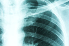 Рентгеновский снимок нервюр и позвоночника Стоковые Изображения RF